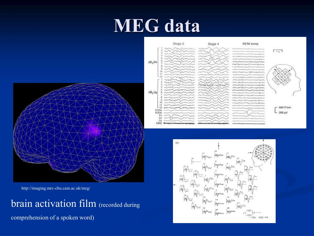 PPT - Basis of the M/EEG signal PowerPoint Presentation - ID:5426702