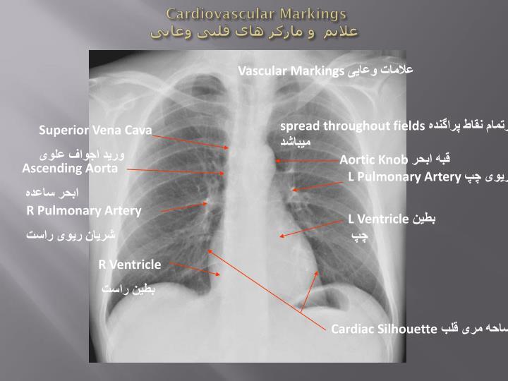 Cardiovascular Markings