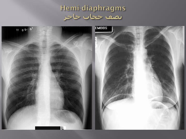 Hemi-diaphragms