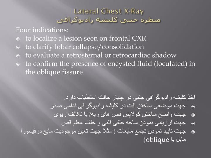 Lateral Chest X-Ray
