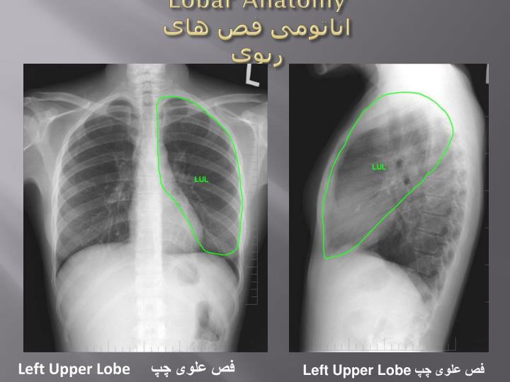 Lobar Anatomy