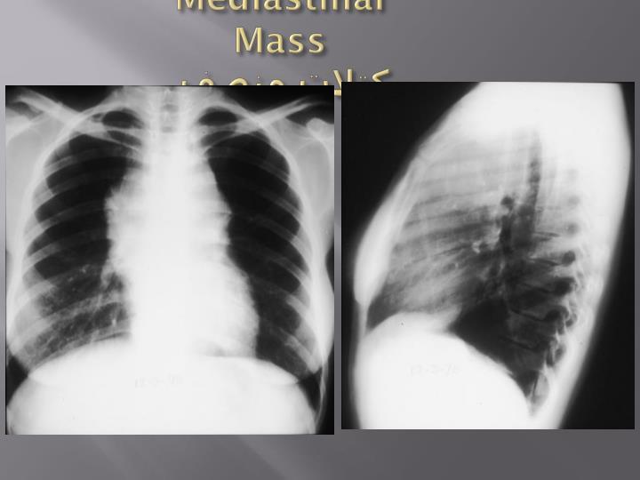 Mediastinal Mass