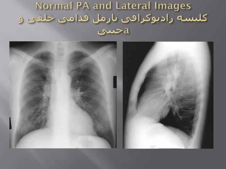 Normal PA and Lateral Images