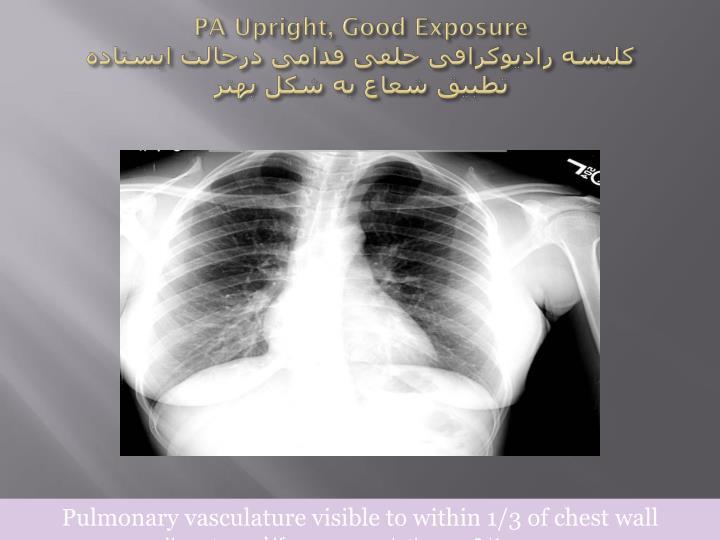 PA Upright, Good Exposure