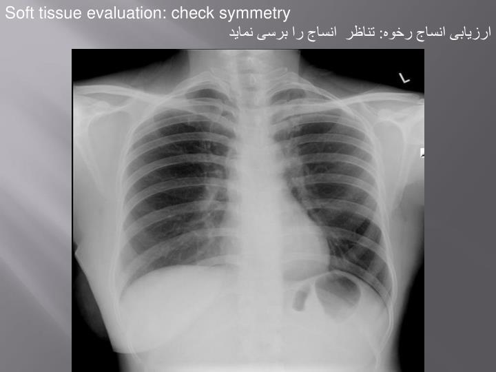 Soft tissue evaluation: check symmetry