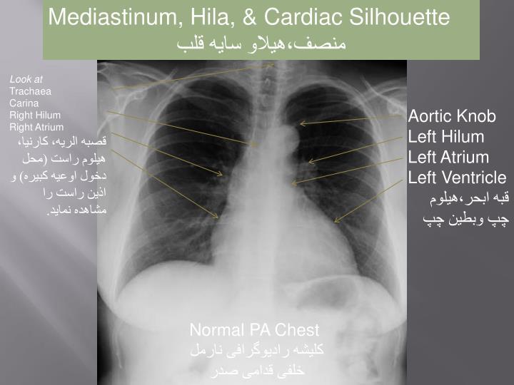 Mediastinum, Hila, & Cardiac Silhouette