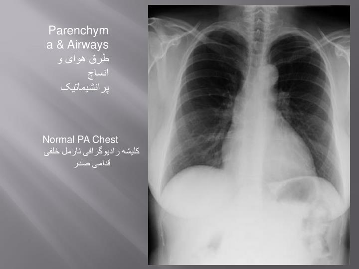 Parenchyma & Airways