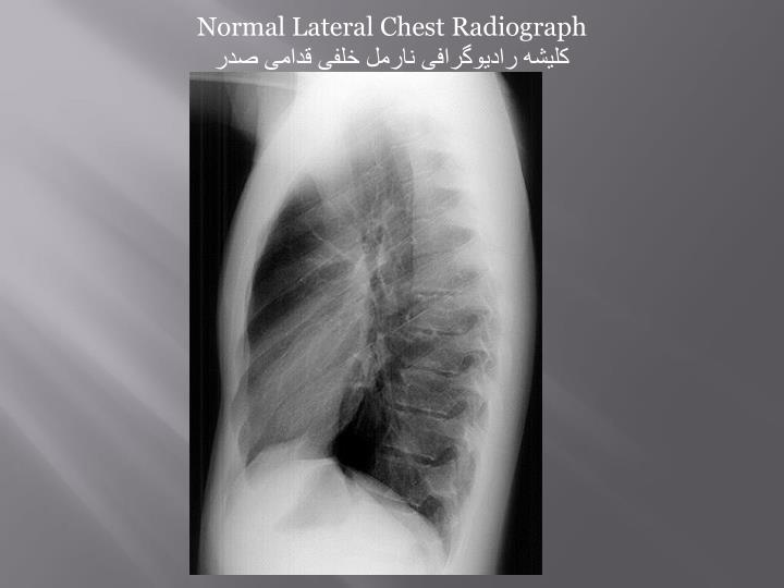 Normal Lateral Chest Radiograph