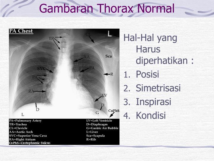 Gambaran Thorax Normal