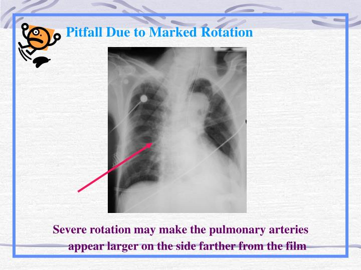 Pitfall Due to Marked Rotation