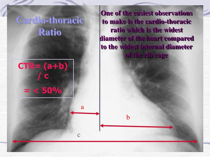 One of the easiest observations to make is the cardio-thoracic ratio which is the widest diameter of the heart compared to the widest internal diameter of the rib cage