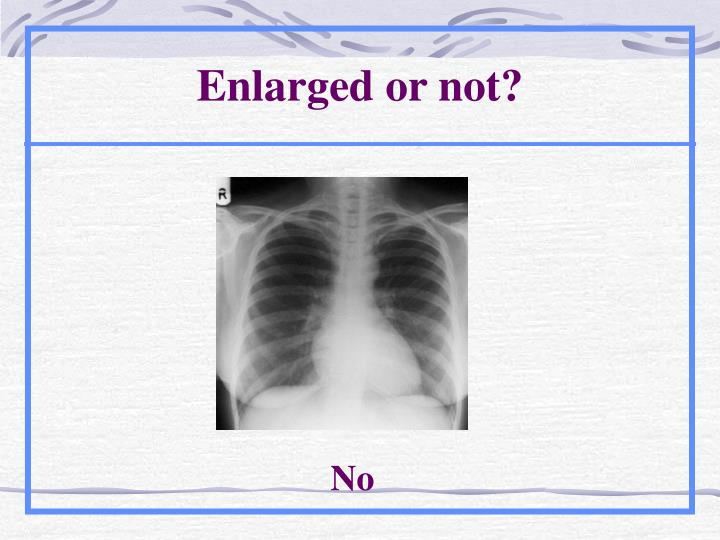 Enlarged or not?