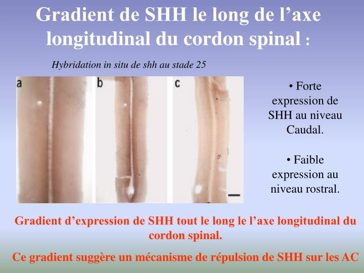 Gradient de SHH le long de l'axe longitudinal du cordon spinal