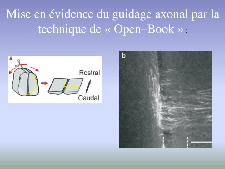 Mise en évidence du guidage axonal par la technique de « Open–Book »