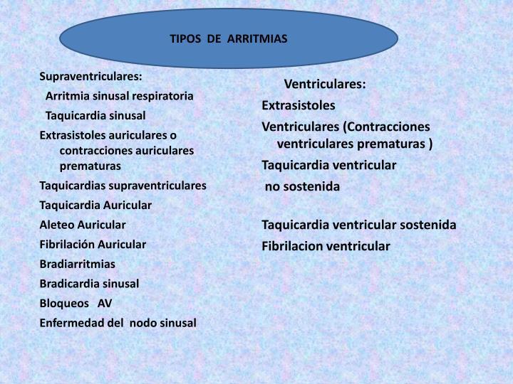 TIPOS  DE  ARRITMIAS