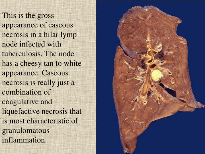 This is the gross appearance of caseous necrosis in a hilar lymp node infected with tuberculosis. The node has a cheesy tan to white appearance. Caseous necrosis is really just a combination of coagulative and liquefactive necrosis that is most characteristic of granulomatous inflammation.