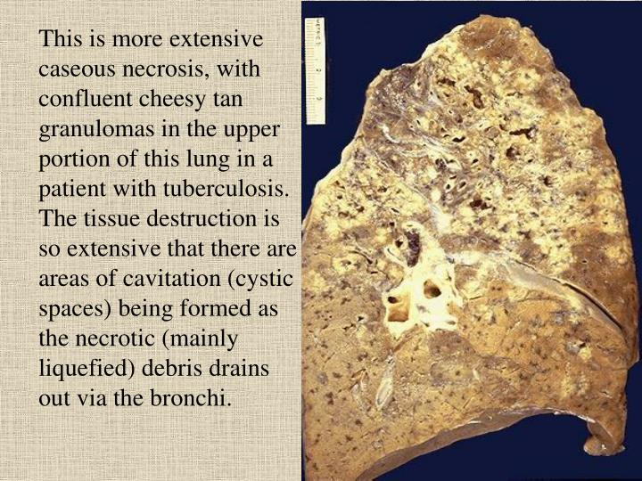 This is more extensive caseous necrosis, with confluent cheesy tan granulomas in the upper portion of this lung in a patient with tuberculosis. The tissue destruction is so extensive that there are areas of cavitation (cystic spaces) being formed as the necrotic (mainly liquefied) debris drains out via the bronchi.