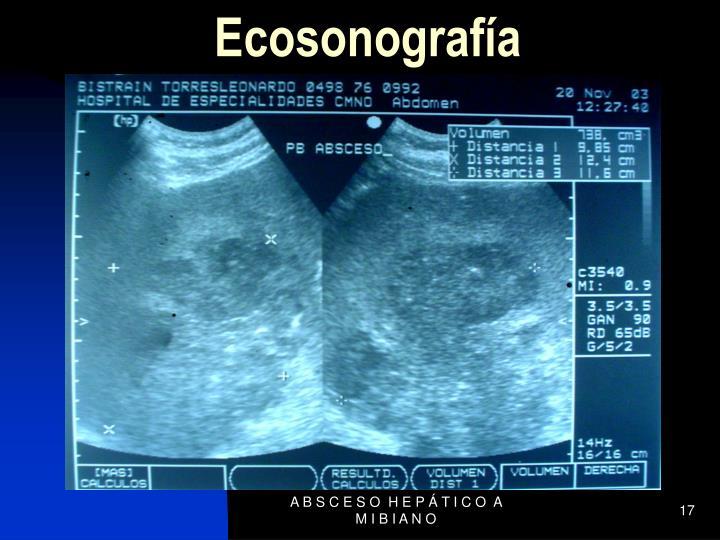 Ecosonografía
