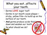 what you eat affects your teeth1