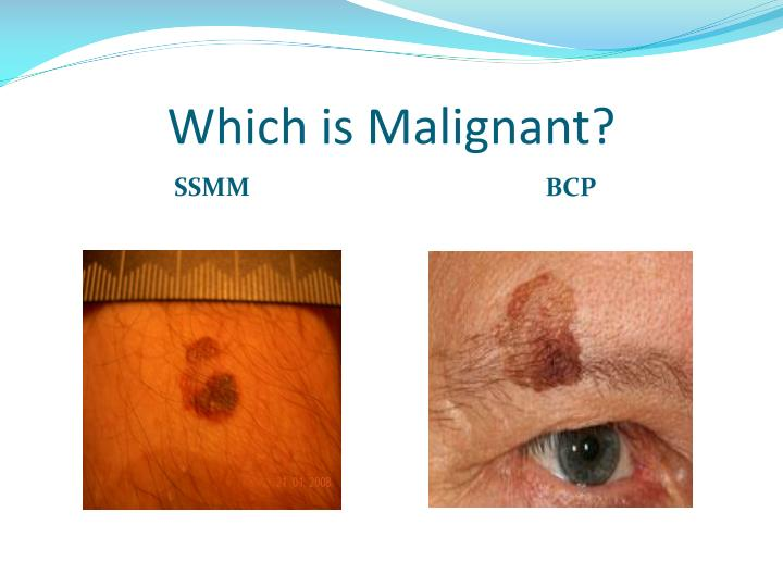 Which is Malignant?