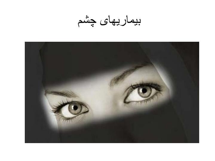 بیماریهای چشم