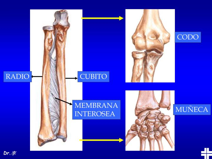 PPT - FRACTURAS DE ANTEBRAZO PowerPoint Presentation - ID:5475198