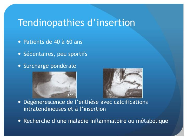 Tendinopathies d
