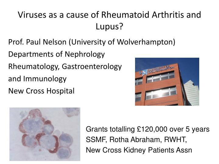 Viruses as a cause of Rheumatoid Arthritis and  Lupus?