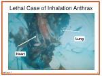 lethal case of inhalation anthrax