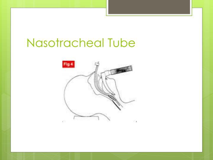 Nasotracheal Tube