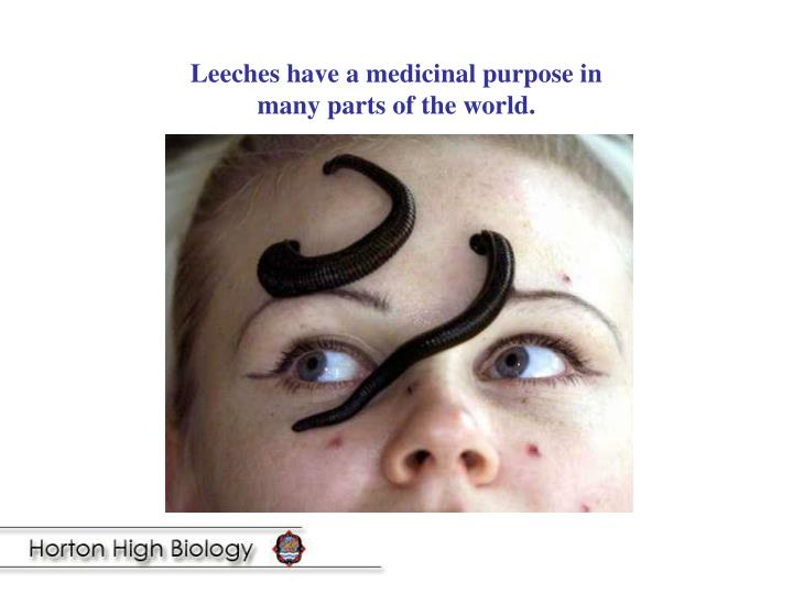 Leeches have a medicinal purpose in many parts of the world.