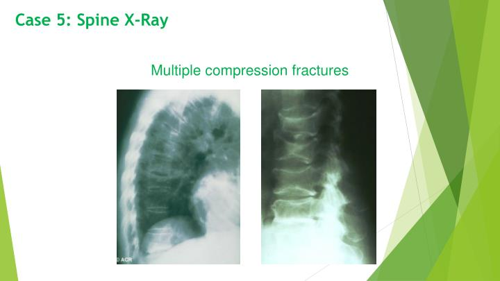 Case 5: Spine X-Ray