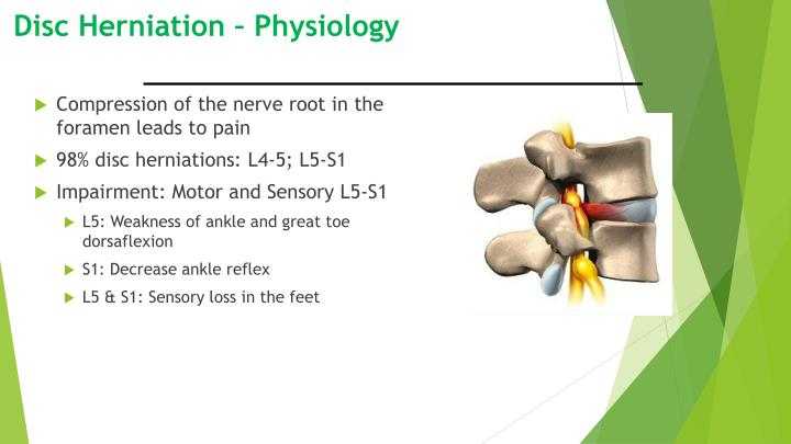 Disc Herniation – Physiology