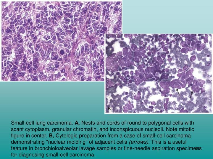 Small-cell lung carcinoma.