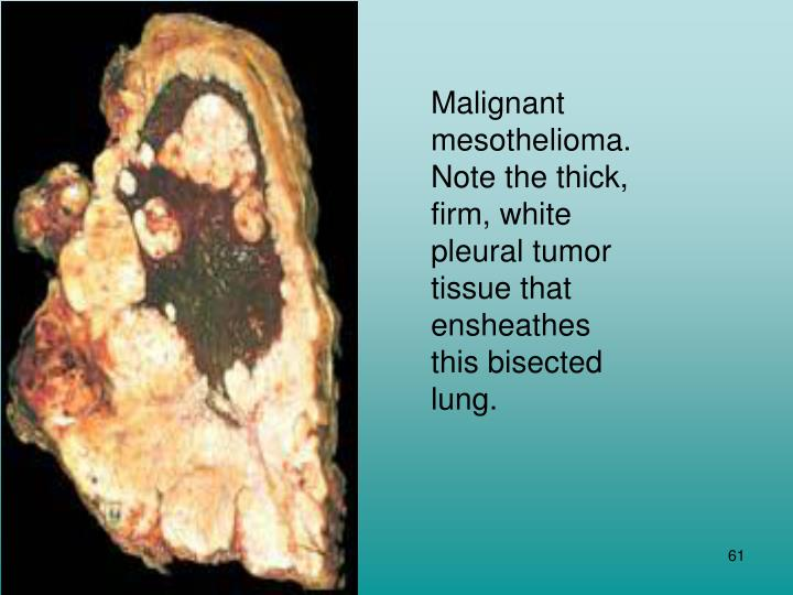 Malignant mesothelioma. Note the thick, firm, white pleural tumor tissue that ensheathes this bisected lung.