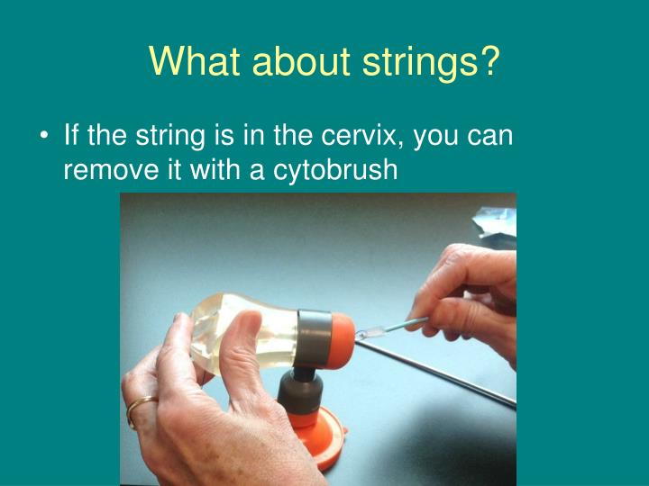 What about strings2