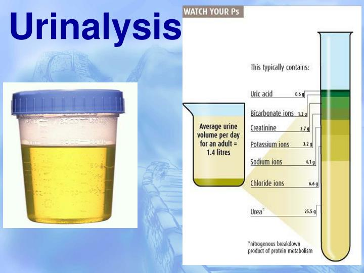 urinalysis kidney and urine observations data Urinalysis: microscopic exam of the urine an infection in the urinary tract or in the kidney mark the lab slip appropriately with the correct patient data.