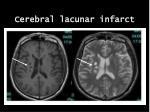 cerebral lacunar infarct