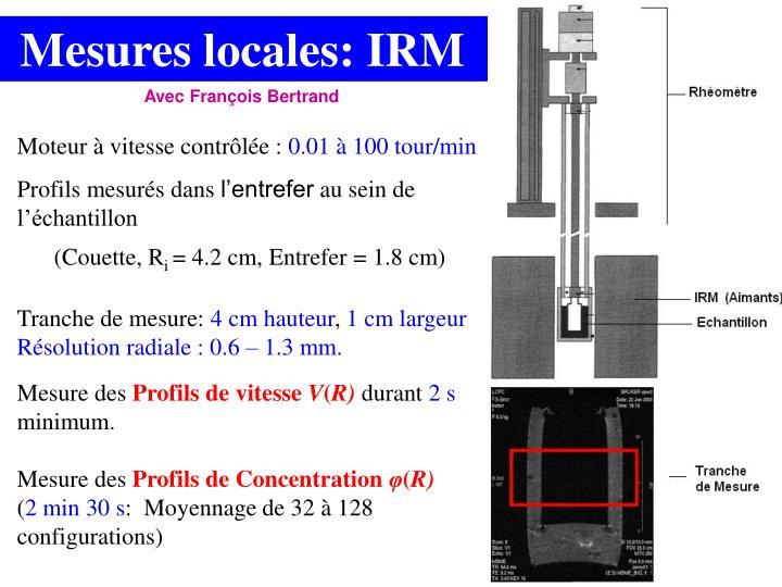 Mesures locales: IRM