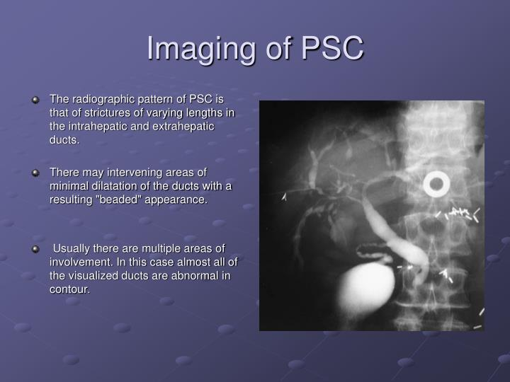 Imaging of PSC