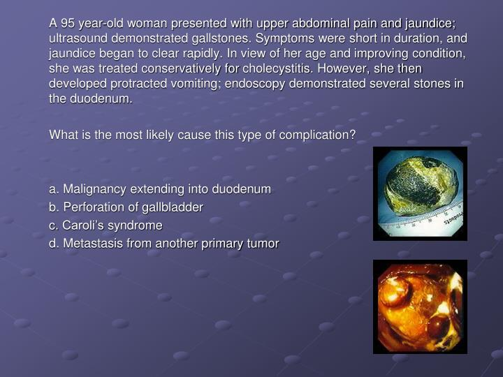 A 95 year-old woman presented with upper abdominal pain and jaundice; ultrasound demonstrated galls...