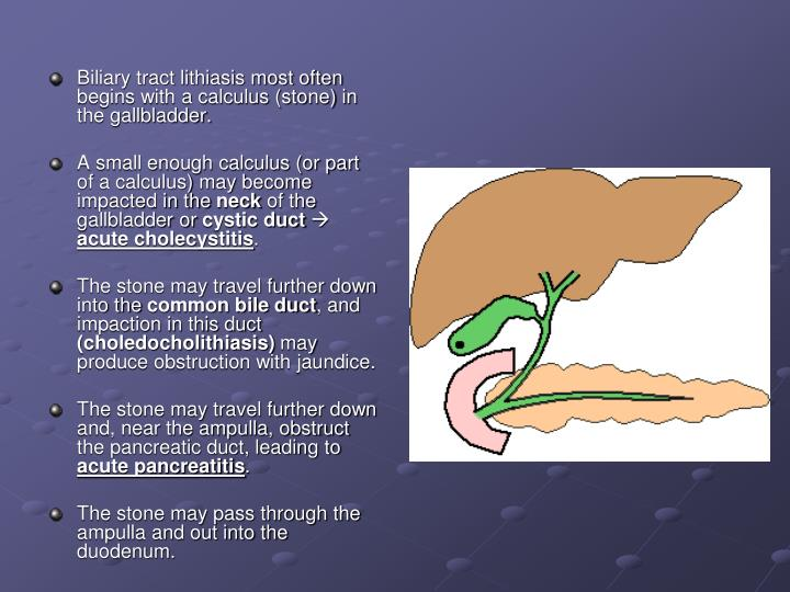 Biliary tract lithiasis most often begins with a calculus (stone) in the gallbladder.