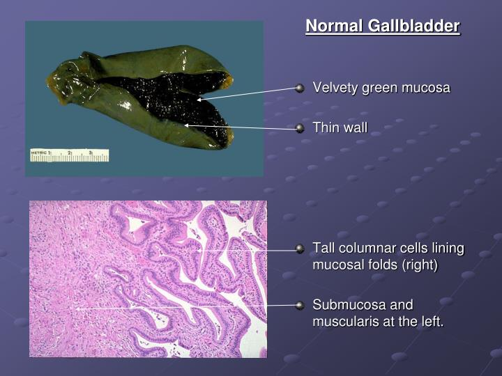 Normal Gallbladder