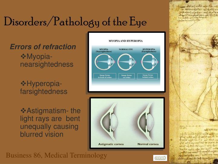 Disorders/Pathology of the Eye