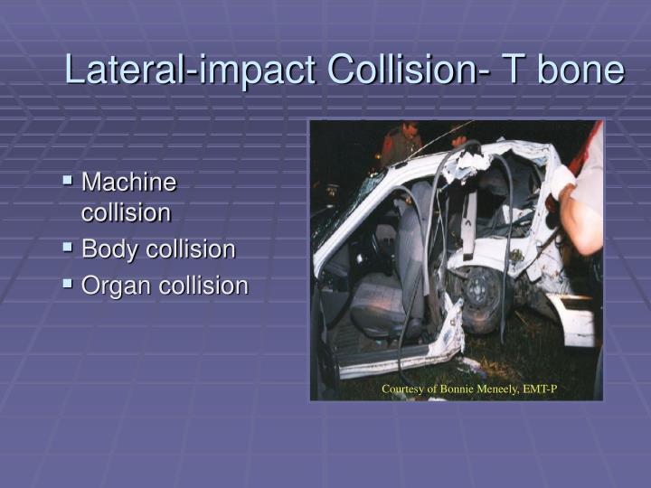 Lateral-impact Collision- T bone