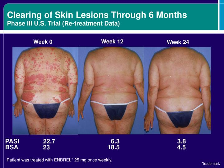 Clearing of Skin Lesions Through 6 Months