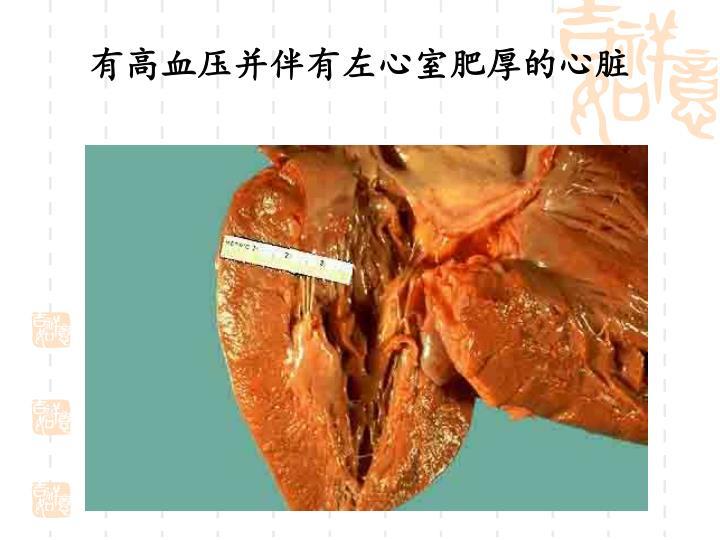 有高血压并伴有左心室肥厚的心脏