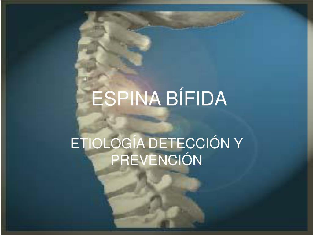 PPT - ESPINA BÍFIDA PowerPoint Presentation - ID:5526864