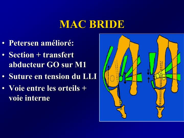 MAC BRIDE