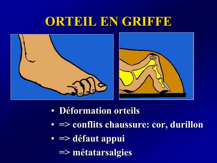 ORTEIL EN GRIFFE